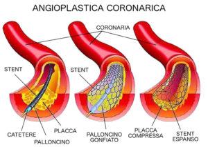 tag-angioplastica-coronarica-ok